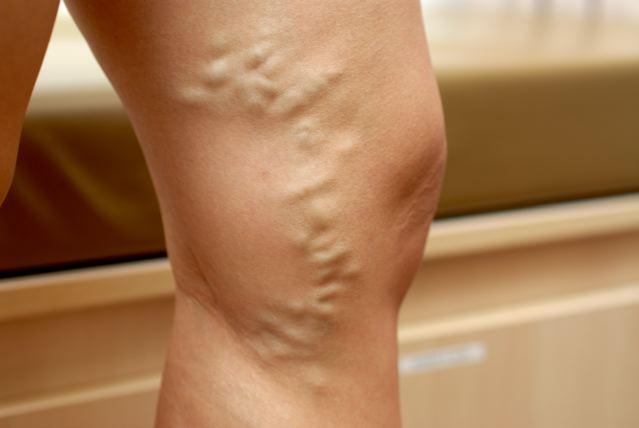 Le vene su vitelli di gambe fanno male che fare